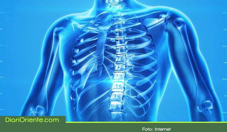 Photo of La osteoporosis se puede prevenir desde la juventud
