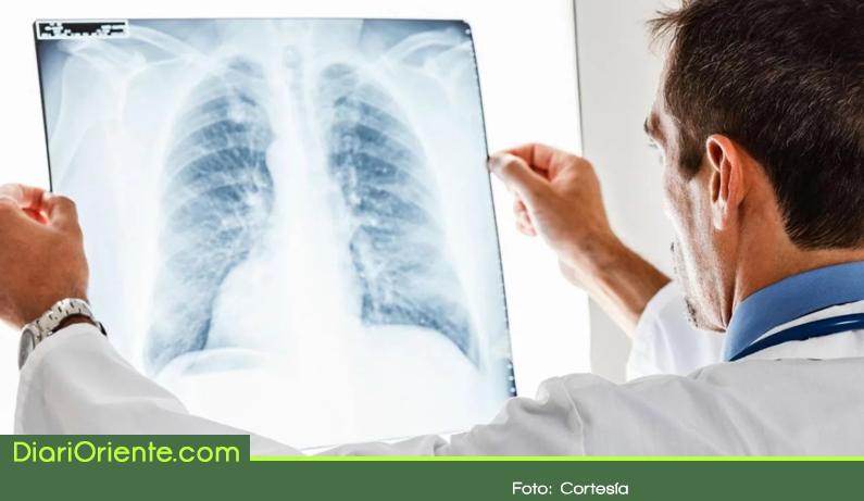 Photo of ¿Cuándo se recomienda examinar la salud de nuestros pulmones?